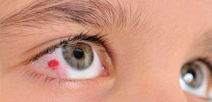 Por que apareceram manchas em meus olhos?