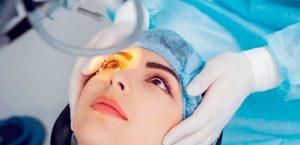Cirurgia de Estrabismo: Principais Dúvidas