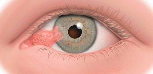 Pterígio: o que é, sintomas, causas e tratamento