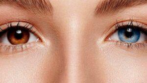 Você conhece a heterocromia ocular?