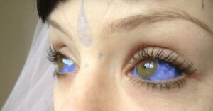 Quais os perigos das tatuagens oculares (na parte branca do olho)?