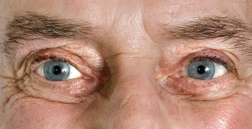 Quais as principais causas do descolamento da retina?