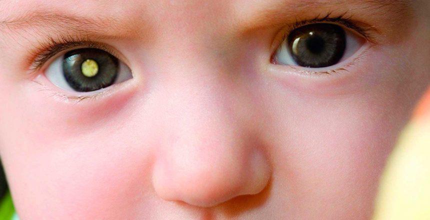 Retinoblastoma: o câncer do olho